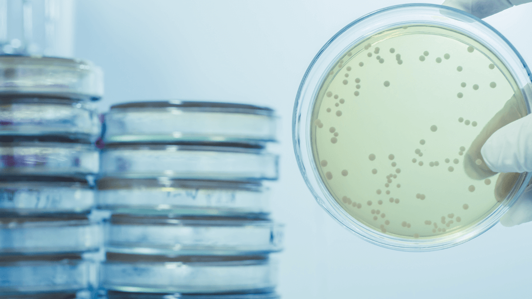 Legionella on a plate bacteria Validate Consulting